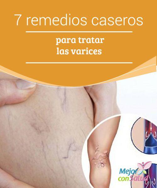 7 remedios caseros para tratar las varices  Las varices o venas varicosas son dilataciones venosas que no permiten el retorno de la sangre al corazón y que afecta mayormente a los miembros inferiores.