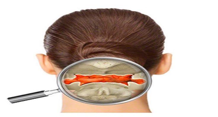 Vertebra Atlante: il disallineamento di questa vertebra cervicale è la causa dei tuoi problemi di salute. - http://frasideilibri.com/vertebra-atlante-disallineamento-vertebra-cervicale-causa-mal-di-schiena-emicrania-difetti-posturali/
