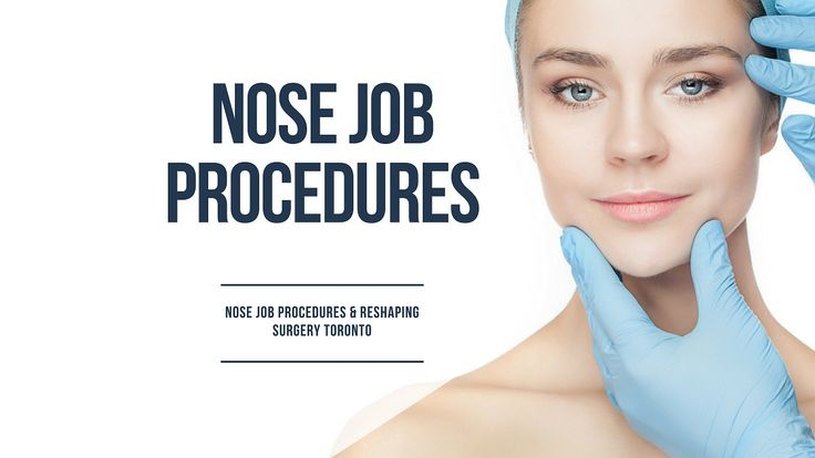 1000 Ideas About Nose Jobs On Pinterest Nose Contouring