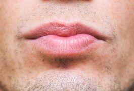 Darkened lips can result from months and years of smoking. Nicotine and tar transfer to the lips through inhalation of the cigarette smoke, causing discoloration and constricting blood vessels in the skin. Build-up and the limited blood flow will turn your lips from their once rosy hue to a darkened, sometimes black version. There are remedies to...