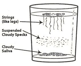 To test for Candida: Before going to sleep, pour some bottled water into a glass and place glass on your bedside table.  Upon waking, spit into the glass of water as soon as you wake up. (Do this before drinking, eating or brushing your teeth.. If your spit floats on the top, you do not have an overgrowth of Candida. However; if your spit looks like what is illustrated in the glass pictured above, then you probably have Candida in your intestinal tract.