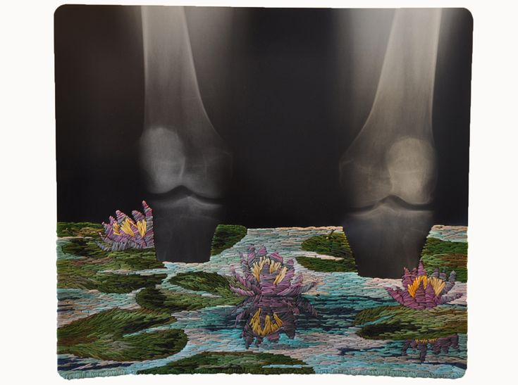 combining the traditional medium of embroidery with plastic x-ray films, the series injects elements of flora in a dreamscape-like scenery.