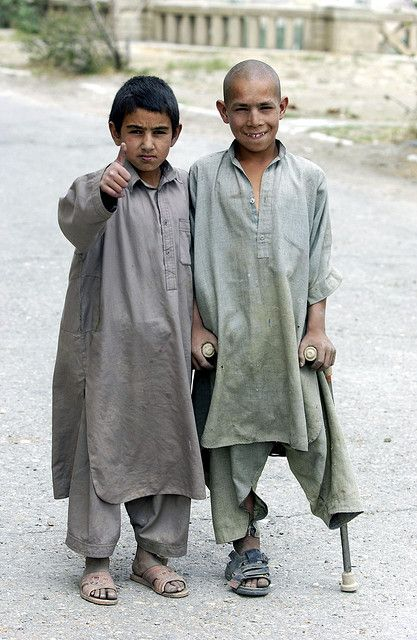 Afghanistan, undoubtedly survivors of war or a bombing or a landmine. Take your pick in Afghanistan.