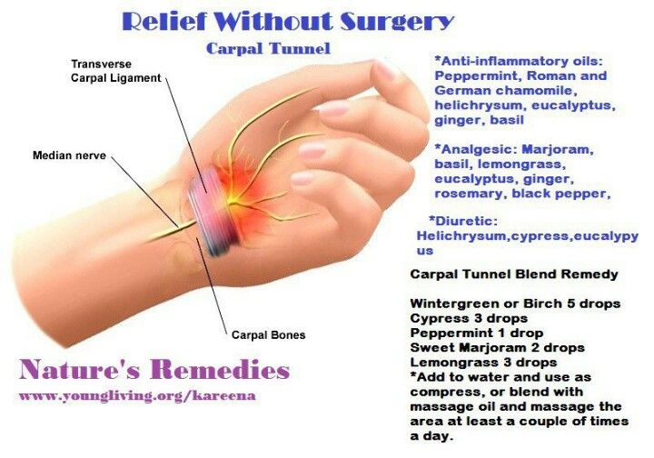 Carpal Tunnel Relief without surgery