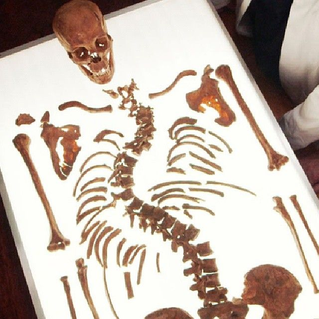 These are the actual bones of King Richard III. The location of his grave was lost for 500 years, until they were recently discovered under a parking lot in England. Learn more in Secrets: Richard III Revealed #King #KingRichard #Bones #Skeleton #Secrets #History #Photooftheday #England #BritishHistory by smithsonian_channel