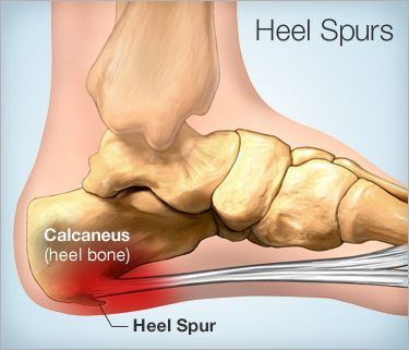 A bone spur, or ostephyte, is a bony growth, or callus that is formed on a normal bone, from repetitive motion in joints over time, usually larger than it needs to be. The most common areas are feet, hips, hands, shoulders, and spine. Repetitive movement causes an injury to the bone and the spur grows to protect it. Most of these are painless and people are not even aware they have them until they have an x-ray for another reason.