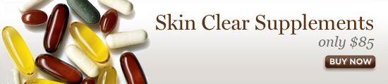 Treat Adult Acne