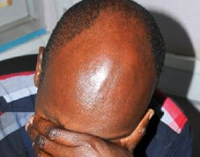 LadejiNaija | Breaking News In Nigeria: Police issue warning to bald men claiming they cou...