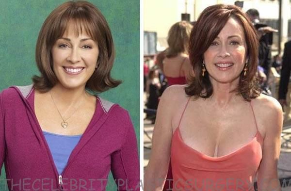 patricia heaton before and after plastic surgery
