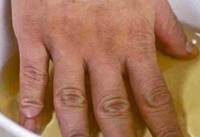 Heti két alkalommal ecetbe áztatta ujjait! Ha megtudod, miért, te is kipróbálod! - Megelőzés - Test és Lélek - www.kiskegyed.hu