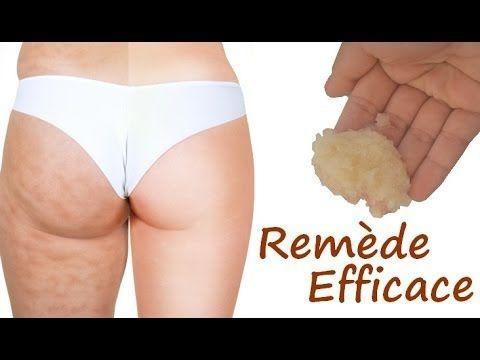Comment se débarrasser de la cellulite ?
