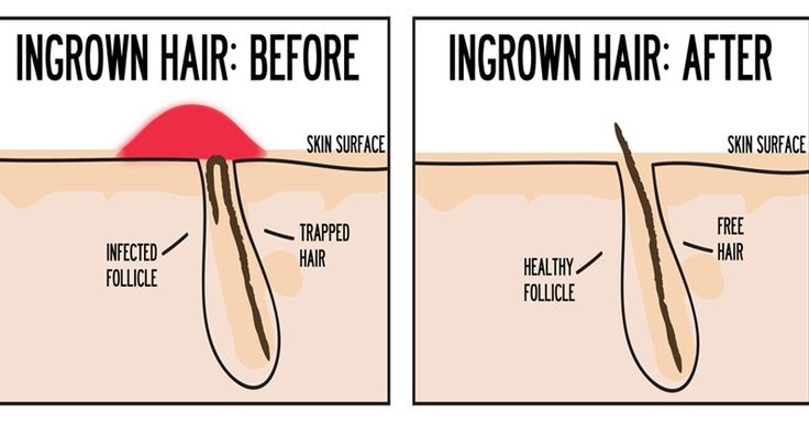 Ingrown hair prevention