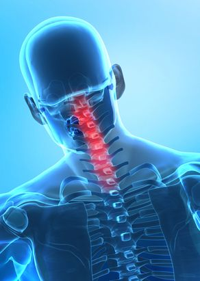 Cervical vertebrae fractures and disc herniation explained by Los Angeles personal injury attorneys | Glotzer & Sweat LLP | 866-229-0101 or 310-623-3771