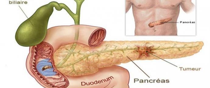5 sinais para detectar o câncer de pâncreas logo no início - http://comosefaz.eu/5-sinais-para-detectar-o-cancer-de-pancreas-logo-no-inicio/