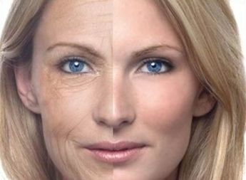 Big difference from Laser Fractional