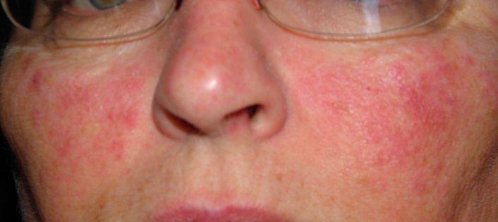 Stress rash on the face || blog manicurex ru