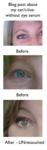 The only effective eye serum I have ever used. Before/after images and more info at site. This stuff is really amazing.