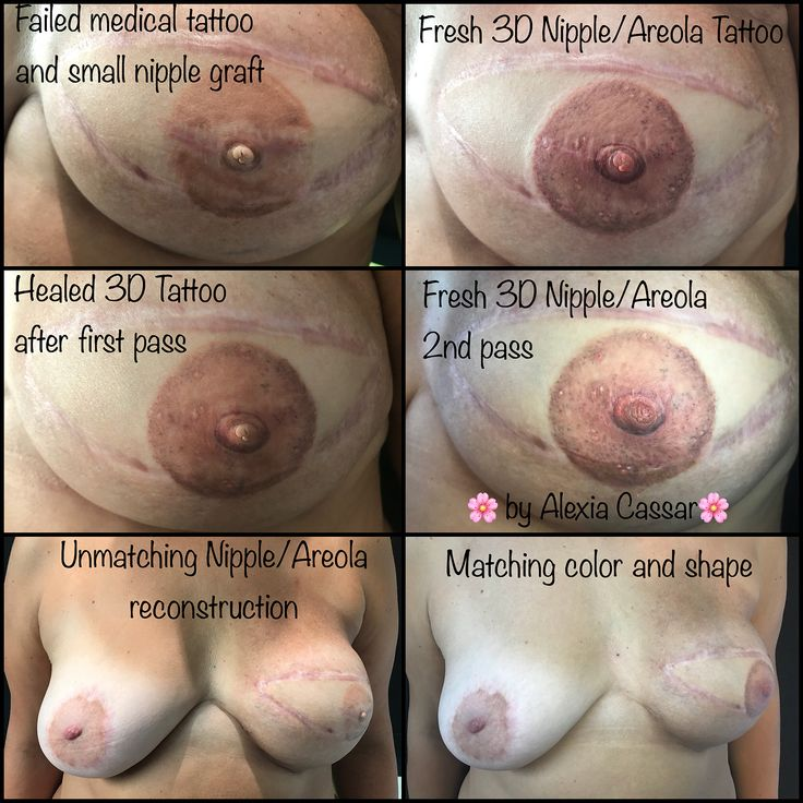 I thought it was important to #share the #fresh and #healed #pictures of this #areolarestorativetattoo #process as this is a #complex process that aims to provide #breastcancer #survivors with a #final #reconstruction, respecting their #journey with #cancer but also the #fragile #skin they have after so many #surgery attempts. The #medical tattoo has failed and color was not matching the natural #areola while #Nipplegraft was too small. First pass aimed to give back its symmetry to the…