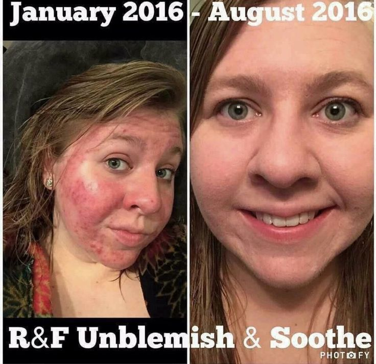 This is what we are talking about when you hear someone talking about Rodan and Fields and you hear life changing! This is Keisi. She dealt with painful skin issues and even though she had to use Unblemish for SEVERAL months before she saw improvement in her skin she is glad that she stuck with it and didn't give up! Her life has been changed! #lifechangingskincare