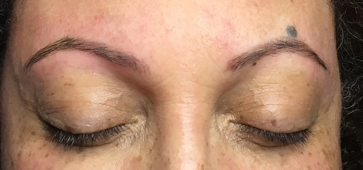 Here is an example of a set of microbladed brows - completely healed after two treatments. This style of brow is very natural and blends in beautifully with your own brow. If you don't have much brow to begin with this is the best option to choose