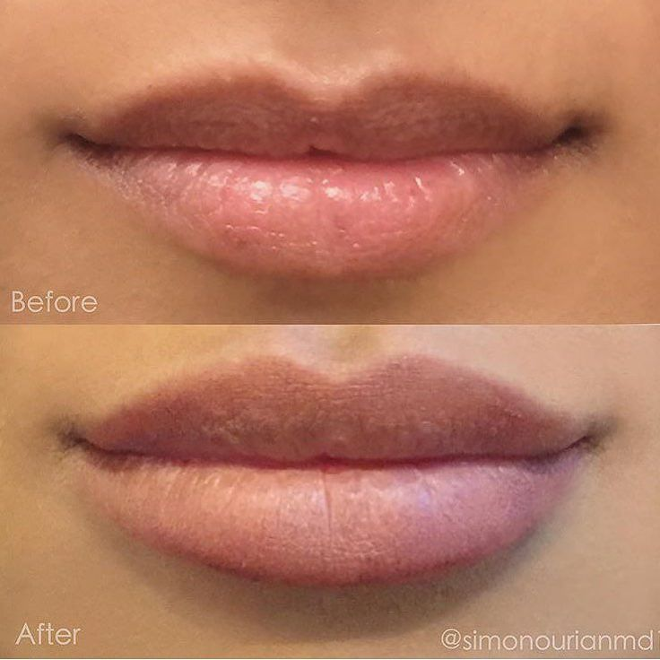 Treatment: Nonsurgical Lip augmentation Purpose: Lip augmentation / enhancement How it works: Hyaluronate Injections Results: Immediate Note: Individual results may vary Phone:310-746-5233 Email:info@epione.com Website:www.epionebh.com Location: Epione Beverly Hills Technique: Multilayer micro-droplet injection Anesthesia: topical numbing cream Time it takes:about 15 minutes Recovery: none Lasts: months to years depending on product used Caution: must be done by an experienced MD Pain level…