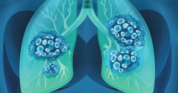 Cancro e cibi ad alto contenuto glicemico