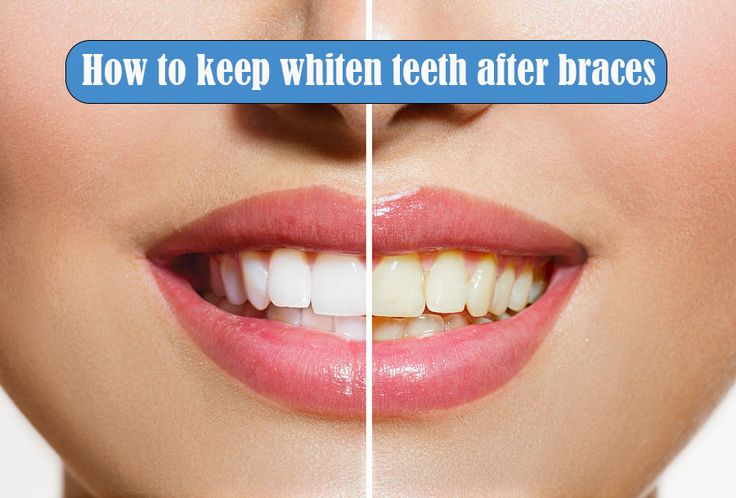 How to keep a nice bite of the teeth after braces: According to experts, teeth after braces tend to move. Therefore, for better fixation and adjustment of teeth when already bite the correction is necessary to apply the relevant tools period How to keep whiten teeth after braces Retention...