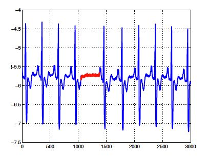 Anomaly detection for the Oxford Data Science for IoT Course