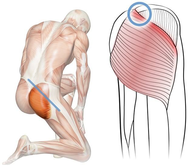 How to find and massage Perfect Spot #12, a common trigger point in the upper gluteus maximus muscle.