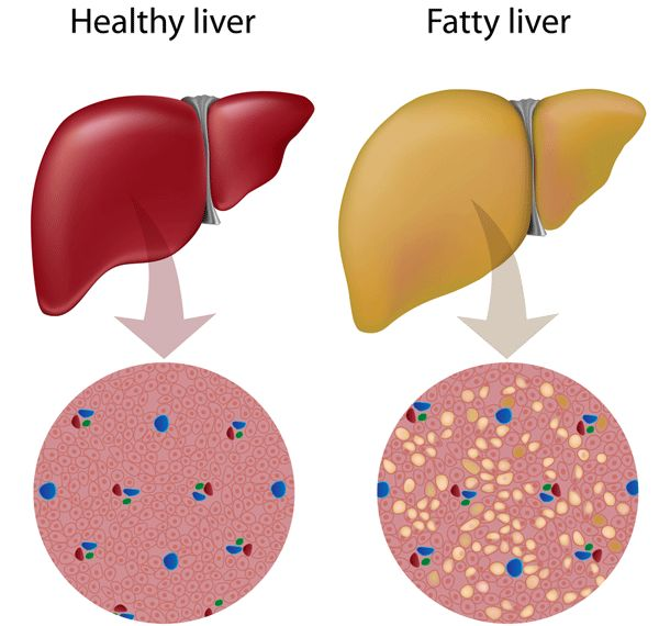 Fatty Liver - what it is and how to get rid of it. Fatty Liver Illustration