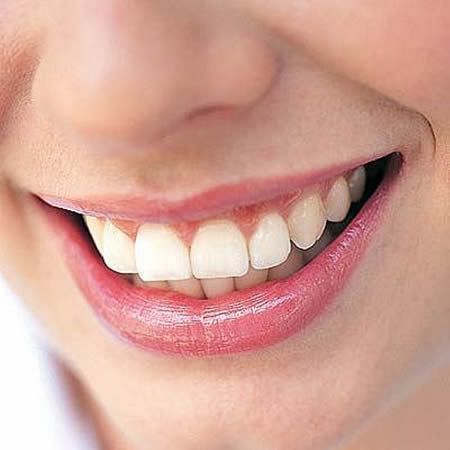 Daily Tips For Natural Teeth Whitening