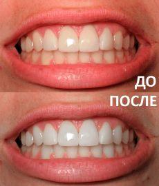 Экшен для фотошопа - отбеливание зубов - ITBC