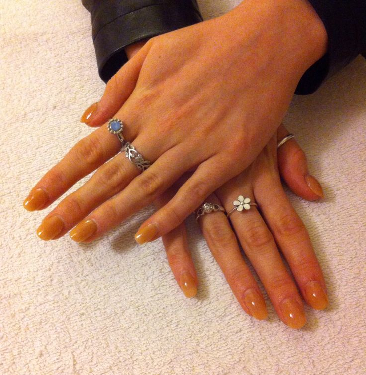 A natural looking set of acrylics with coloured polish