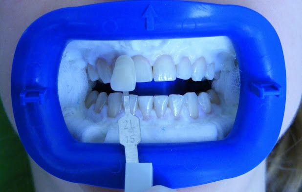 Sbiancamento dentale - Una procedura estetica per i grandi risultati sul tuo bellezza dei denti! Vi invitiamo a vedere di più qui e contattaci subito: http://www.intermedline.com/dental-clinics-romania/ #clinicadentale #clinicadentaleinRomania #clinicaodontoiatrica #clinicaodontoiatricainRomania #sbiancamentodentale #sbiancamentodentaleinRomania #sbiancamentodidenti #sbiancamentodidentiinRomania #dentista #dentistainRomania #turismodentale #turismodentaleinRomania