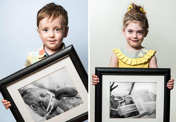 Erőteljes előtte-után Portrék koraszülötteknek