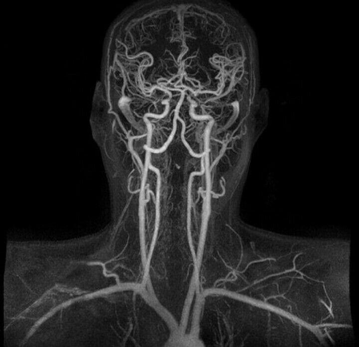 12 best Gross Anatomy images on Pinterest   The brain, Human body ...