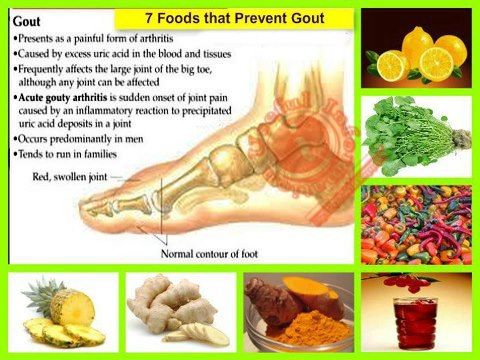 why uric acid level increase in body best home remedy for gout attack reducing uric acid in blood naturally