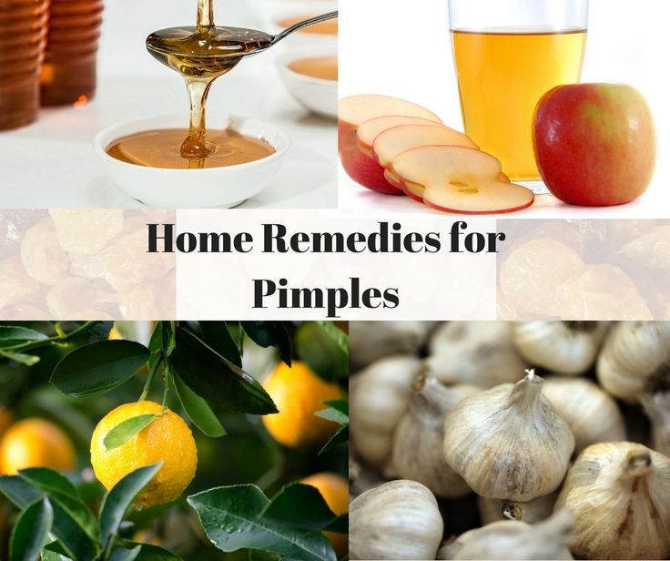 Home Remedies For Pimples #naturalremedies #homeremedies #organicfoods #organictips #naturals #naturalover #beautiful #lemon #naturalremediesforseenzing #nature #scenories #forest #saveearth #savelife #orange #mint #beautycare #beautytips #healthcare #healthtips #fun #memes #infographics #skinallergy #skincare #skincaretips #naturalsforskincare