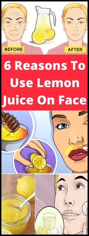 ESSENTIAL 6 REASONS TO USE LEMON JUICE ON FACE