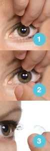 The best tips for lens removal of UltraHealth are:  - use dry fingers,  - hold the eye open by holding the upper lid up (see #1)  and  -  use a narrow pinch at the bottom of the soft skirt (see #2) at the 5 and 7 o'clock position.