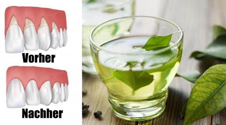 Zahnfleischrückgang kann ziemlich alarmierend sein. Es ist nicht nur schmerzhaft, es kann auch zu Taschen oder Lücken zwischen den Zähnen und dem Zahnfleisch führen, so dass sich schädliche Bakterien bilden können. Laut WebMD, kann es zu schweren Schäden im Stützgewebe und in der Knochenstruktur