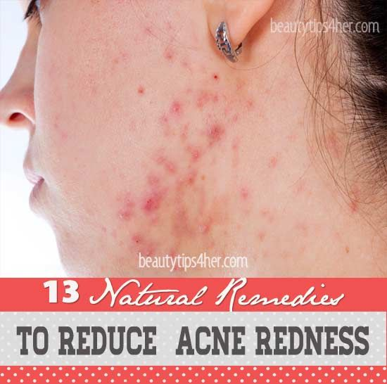 Home Remedies To Reduce Acne Redness | Look Good Naturally
