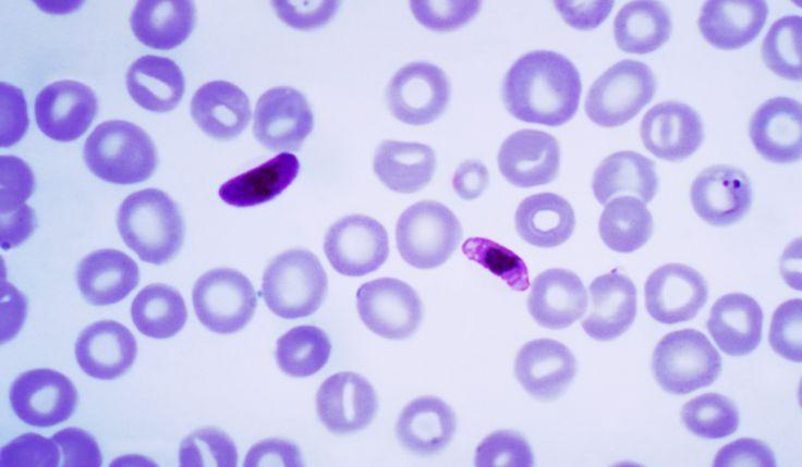 thesis statement on malaria