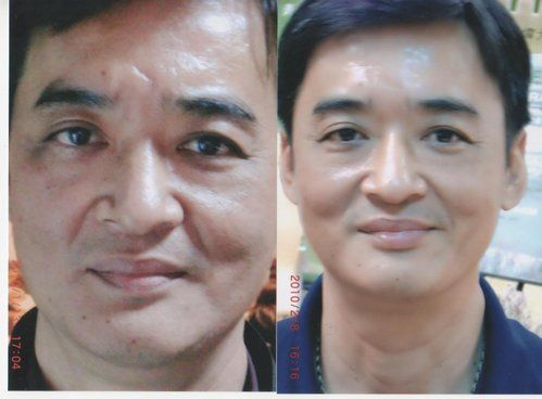 Luminesce Serum helps with wrinkles, scars and fine line. Look younger again. from Jeunesse