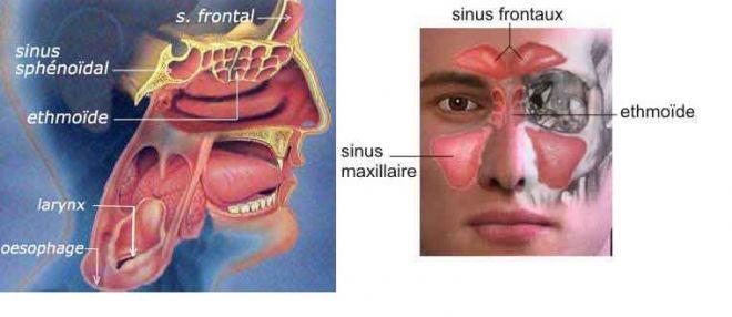 Maux de tête, migraine et sinusite - Nez
