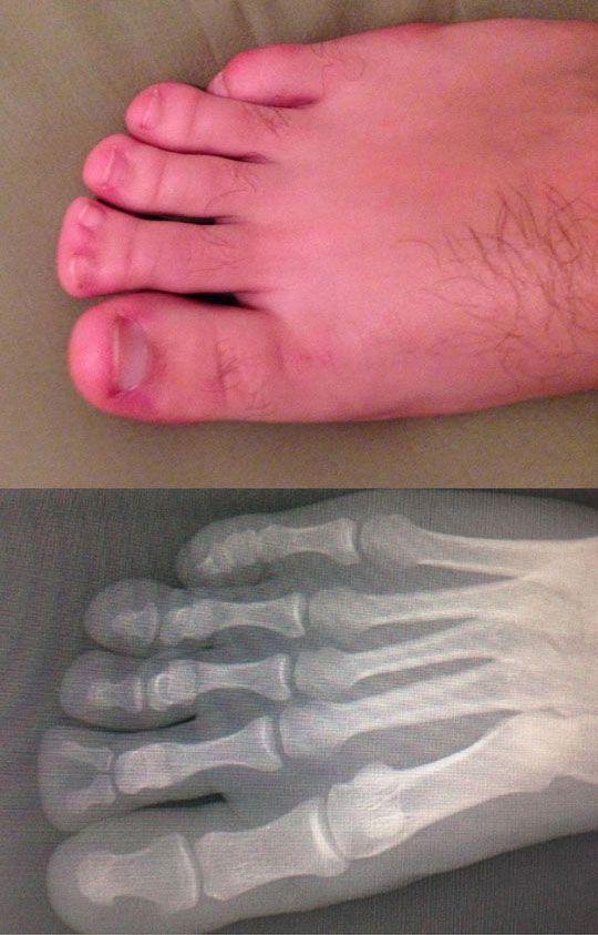 I hate feet...