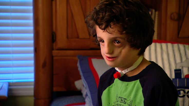 Meet a brave little boy with Treacher Collins Syndrome, an inherited deformity of the face.