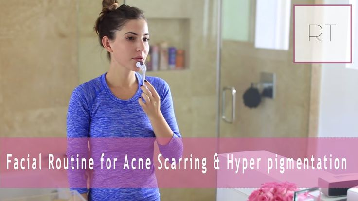 ♥ Facial Routine for Acne Scarring & Hyper pigmentation | Rachel Talbott ♥