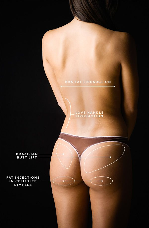 "Here's what a butt lift consultation is REALLY like - One of our editors had a consultation with a plastic surgeon in NYC known as the ""butt lift genius"". Click through to read about her experience! 