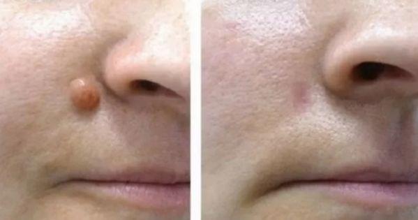 Elimina cualquier fibroma o verruga de la piel usando un solo ingrediente. Este método funciona en el 100% de los casos!utilizando vinagre de manzana